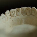 "a dental cast preserving the word הושיעני (hoshiani, ""save me"") inscribed on the verso of a lower set of teeth in a story told in the 2009 film A SERIOUS MAN (dir. Coen Bros.)"
